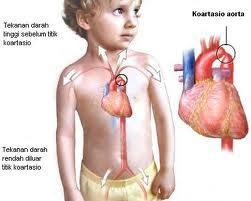 Cara Mengobati Jantung Bocor Anak